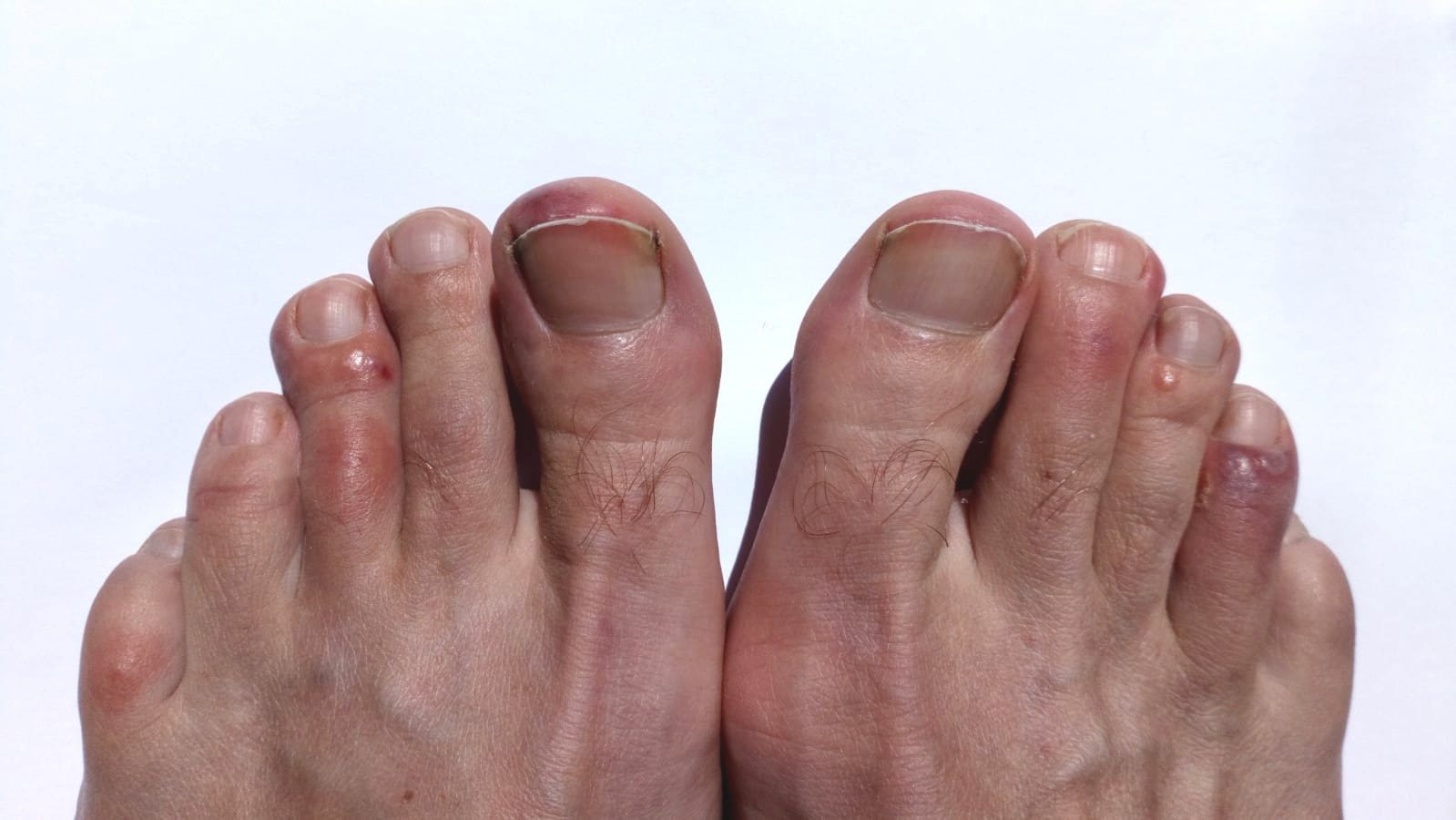 Photograph of COVID Toes